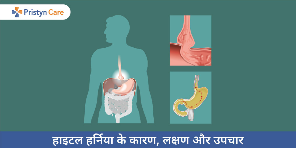 Hiatal hernia in Hindi