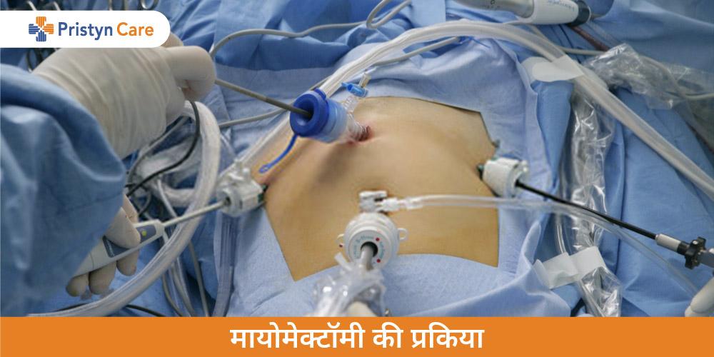 Myomectomy in Hindi