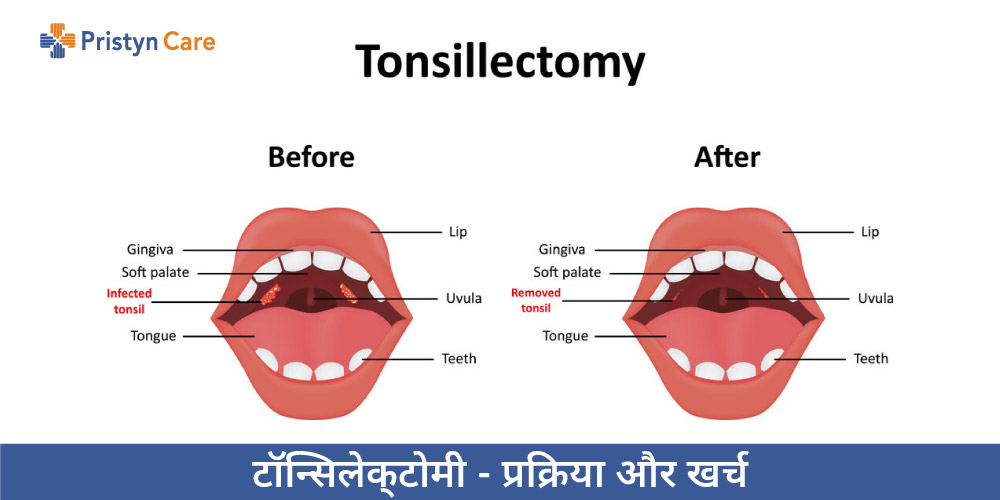 Tonsillectomy in Hindi