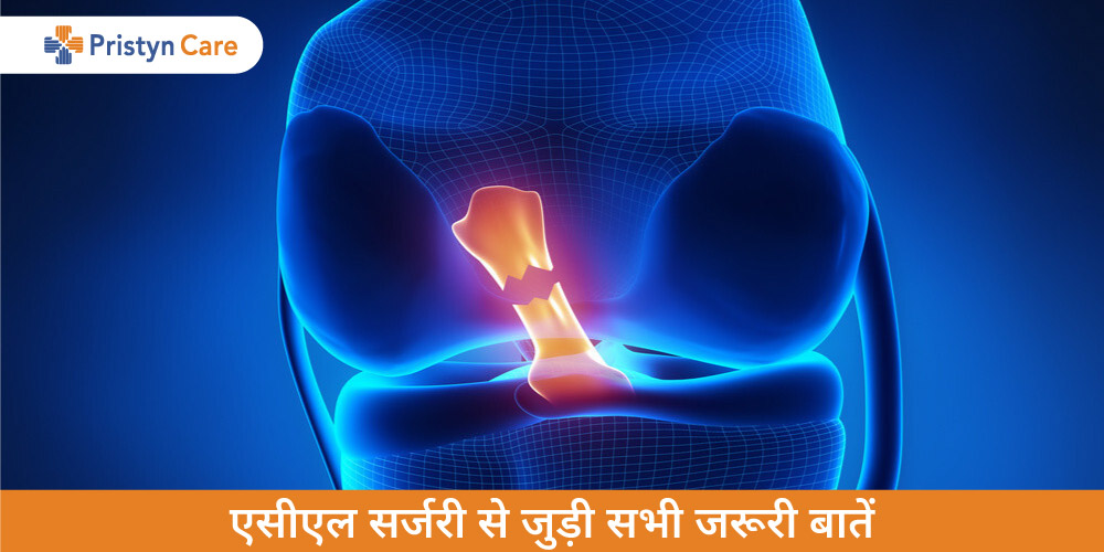 acl-surgery-in-hindi