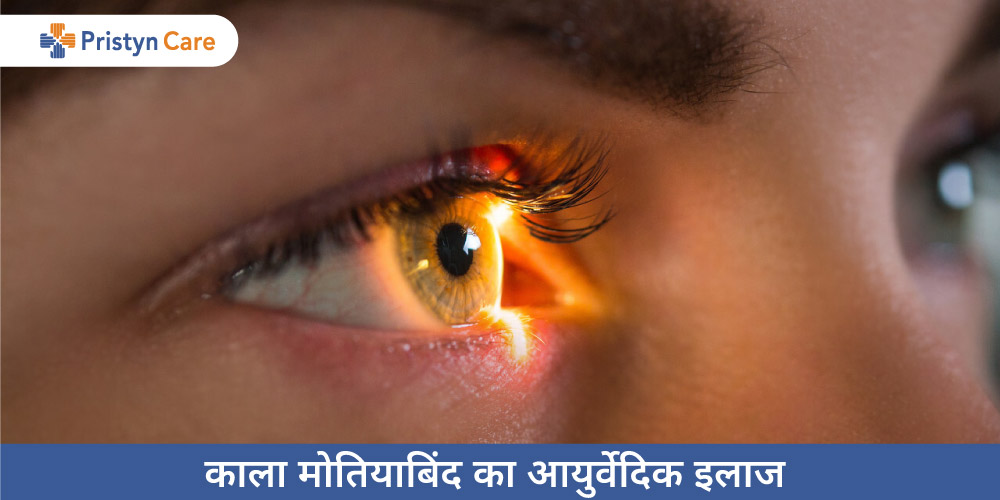 ayurvedic-treatment-of-glaucoma-in-hindi