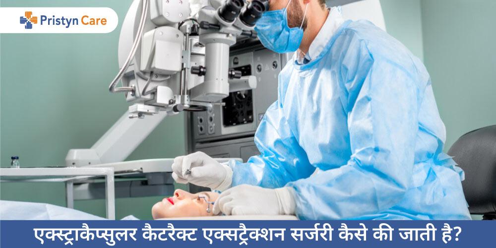 extracapsular-cataract-extraction-in-hindi