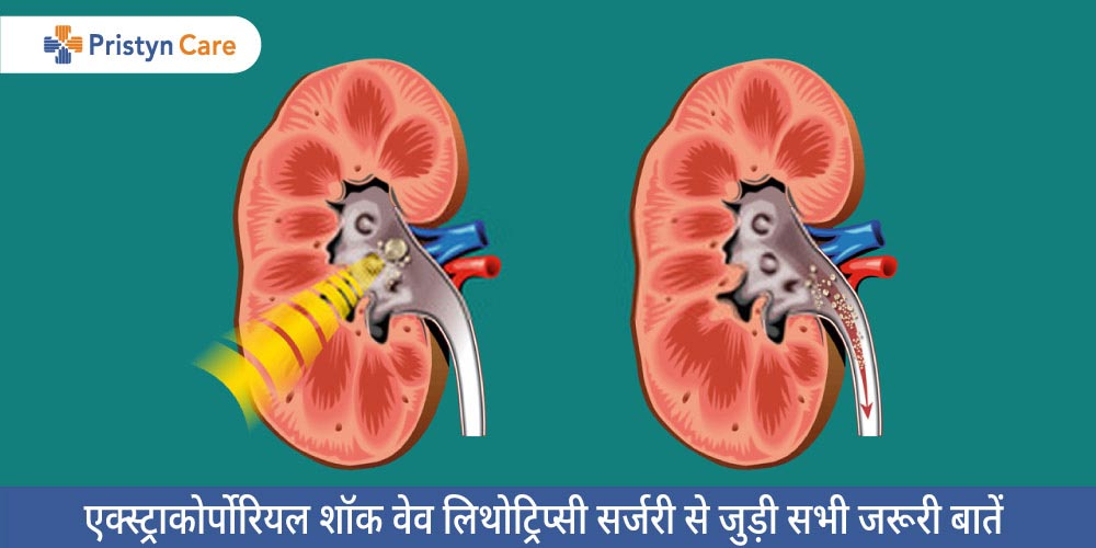 extracorporeal-shock-wave-lithotripsy-in-hindi