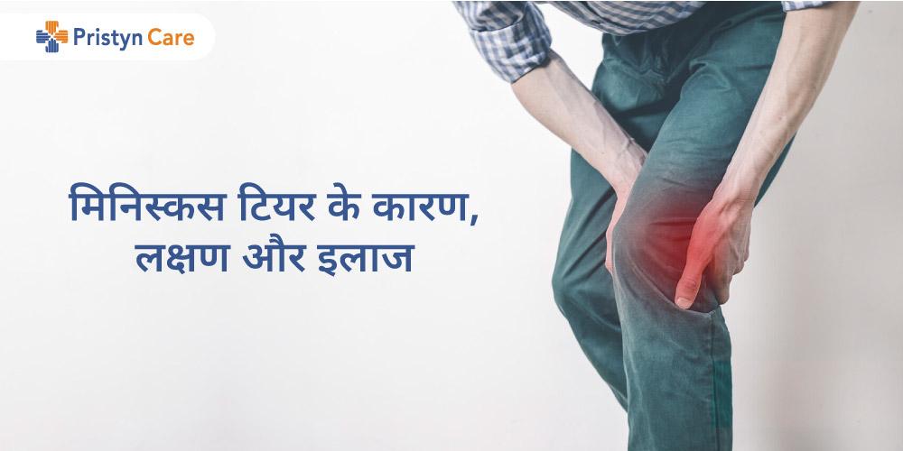 meniscus-tear-in-hindi