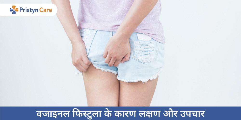 Vaginal Fistula in Hindi