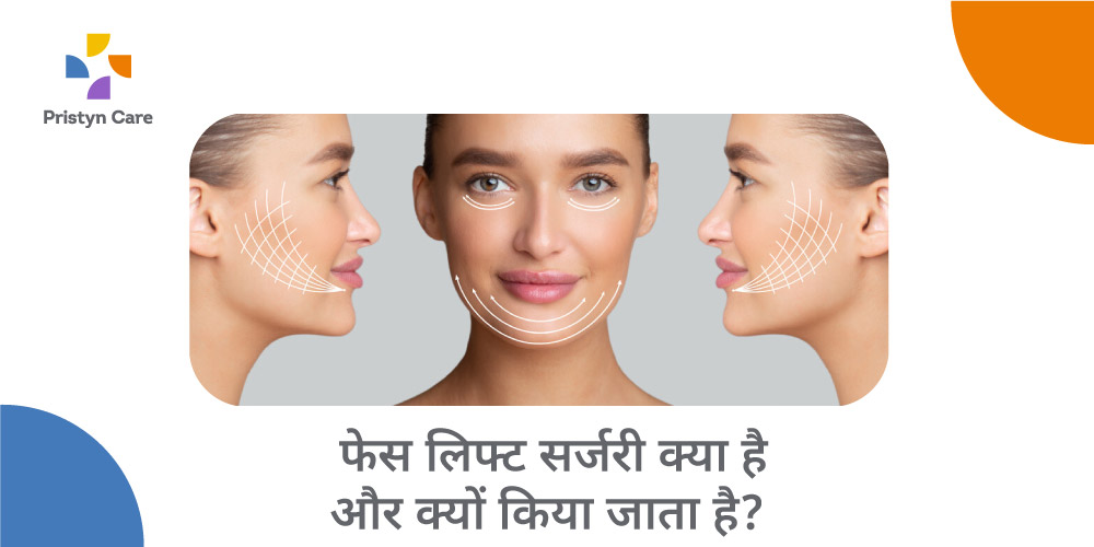 facelift-meaning-in-hindi