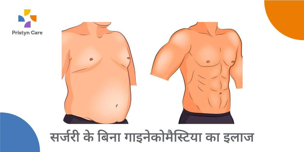 gynecomastia-treatment-without-surgery-in-hindi