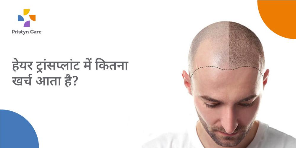 hair-transplant-cost-in-hindi