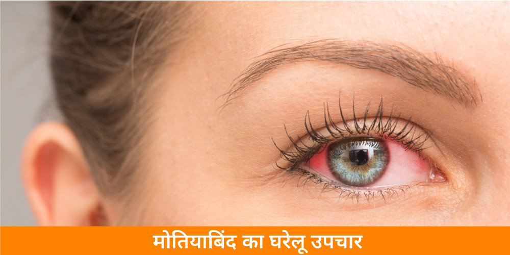 home-remedies-for-cataract-in-hindi