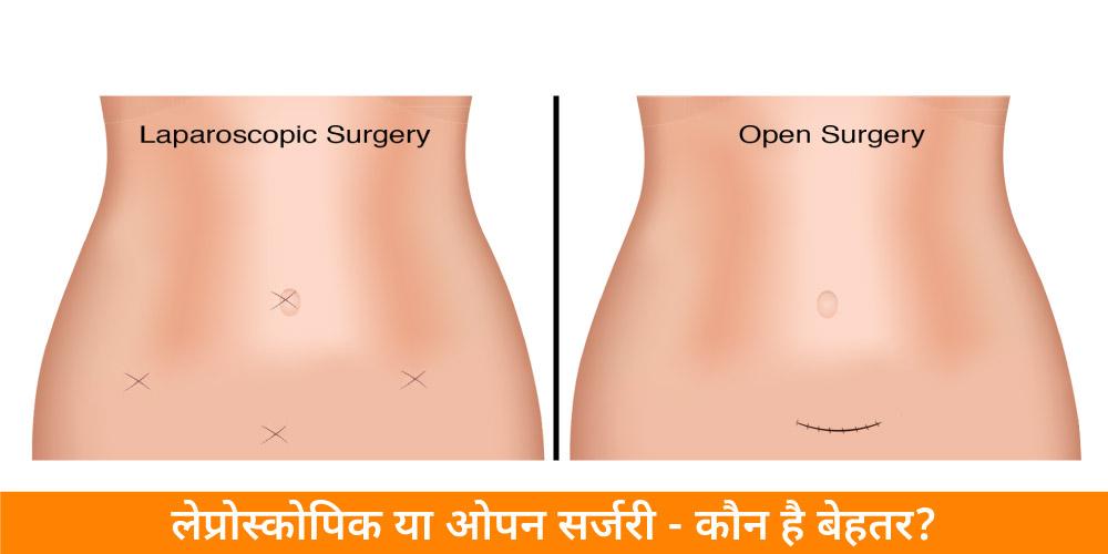 लेप्रोस्कोपिक या ओपन सर्जरी