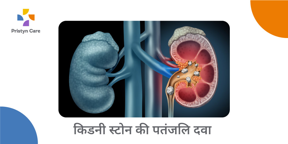 patanjali-medicine-for-kidney-stone-in-hindi