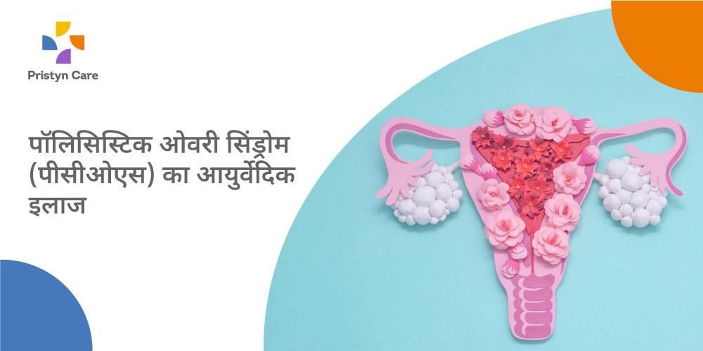 pcos-ayurvedic-treatment-in-hindi