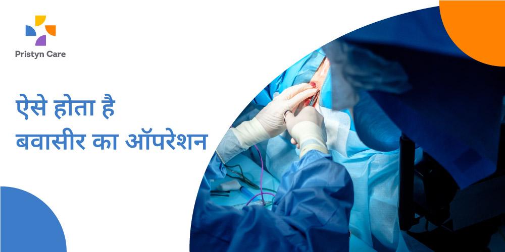 बवासीर के सर्जरी कैसे की जाती है