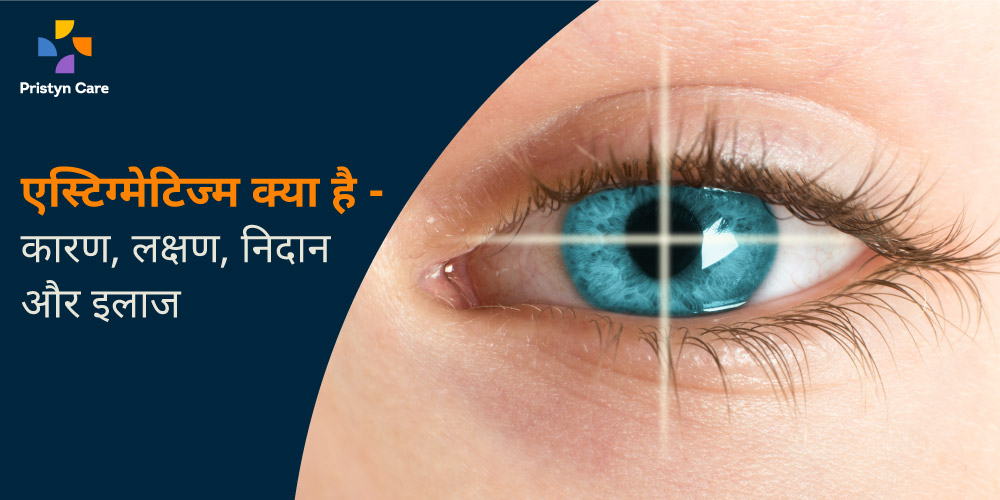 causes-symptoms-and-treatment-of-astigmatism-in-hindi
