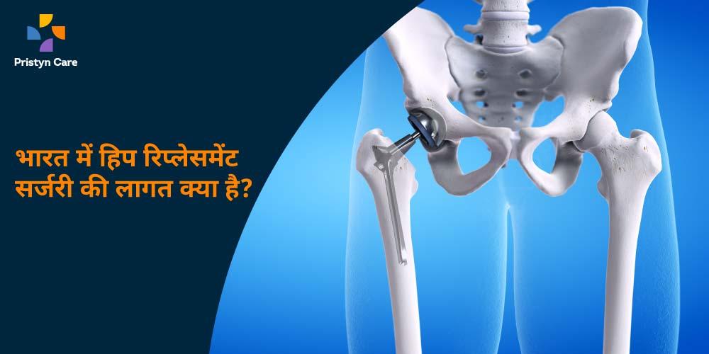 india-me-hip-replacement-surgery-ki-cost