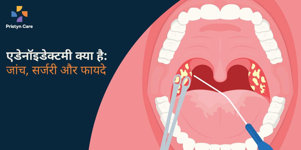 adenoidectomy-kya-hai-procedure-aur-faayde