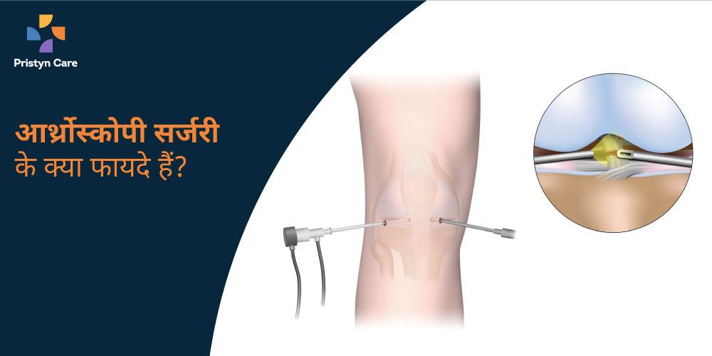 arthroscopy-surgery-ke-kya-fayde-hain
