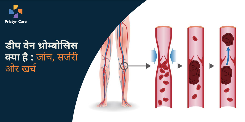 dvt-kya-hai-jaanch-surgery-aur-kharch
