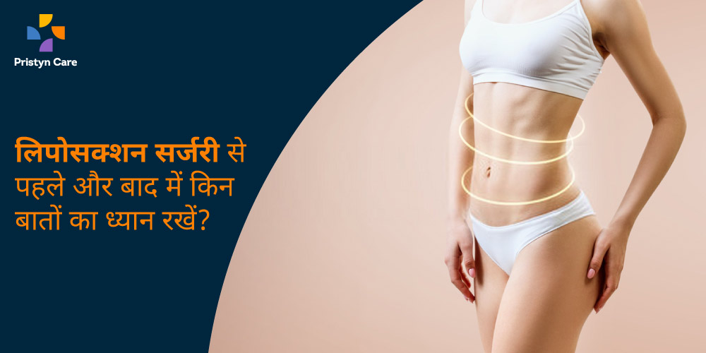 liposuction-surgery-before-and-after-in-hindi
