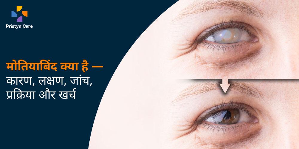 motiyabind-kya-hai-kaaran-lakshan-jaanch-prakriya-aur-kharch