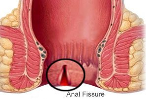 best doctor for fissure in gurgaon south delhi