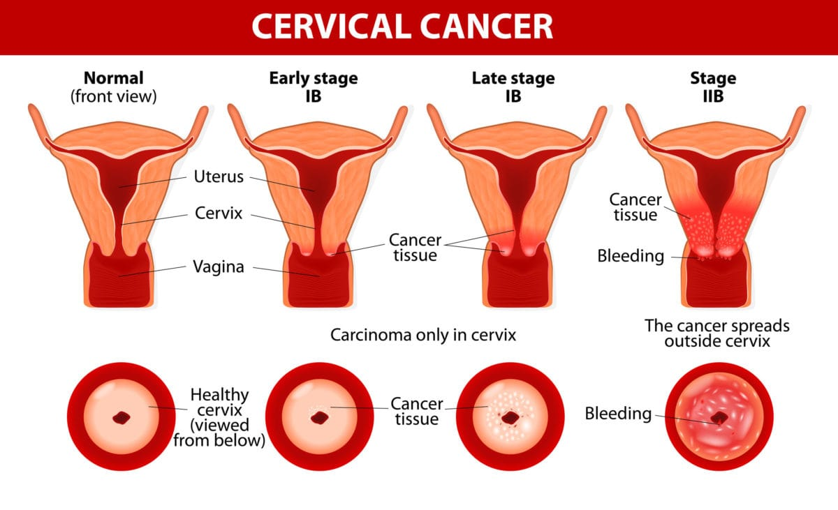 Best Cervical Cancer Treatment in Gurgaon South Delhi