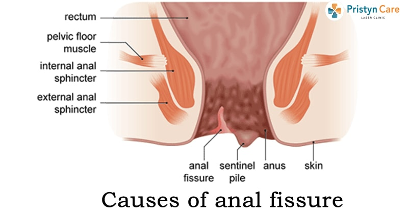 Causes of Anal Fissure