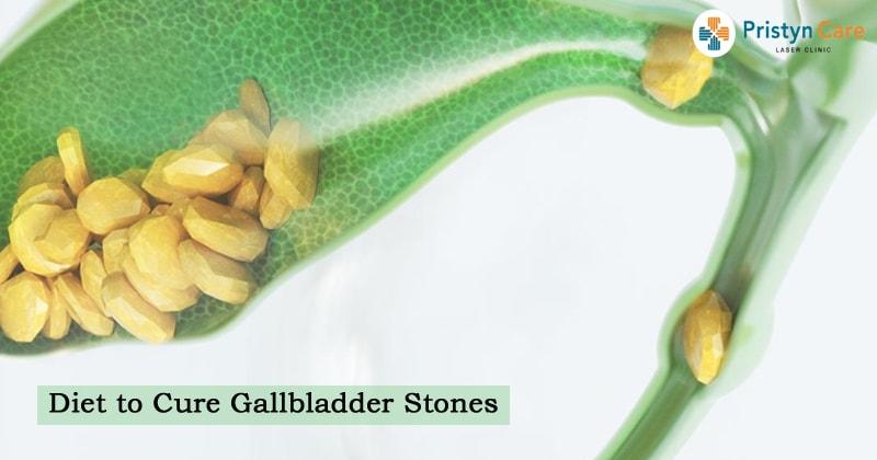 Diet to Cure Gallbladder Stones