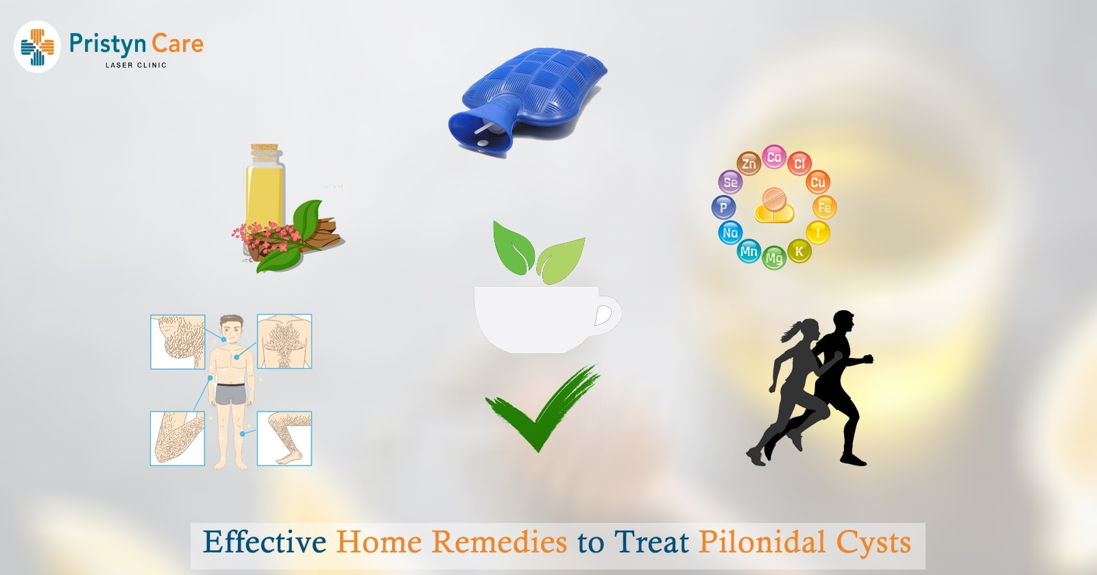 Effective Home Remedies to Treat Pilonidal Cysts