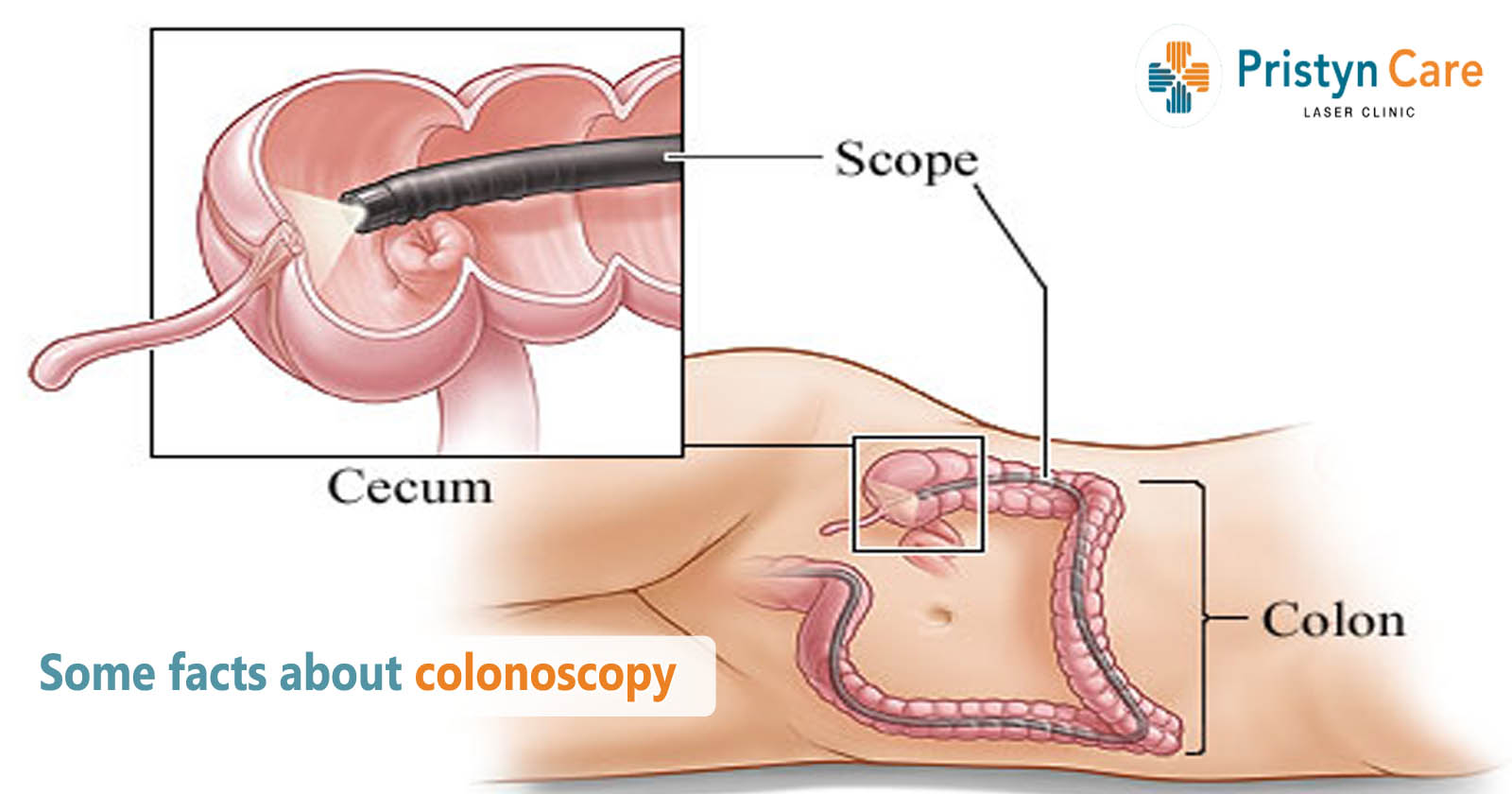 Some facts about colonoscopy