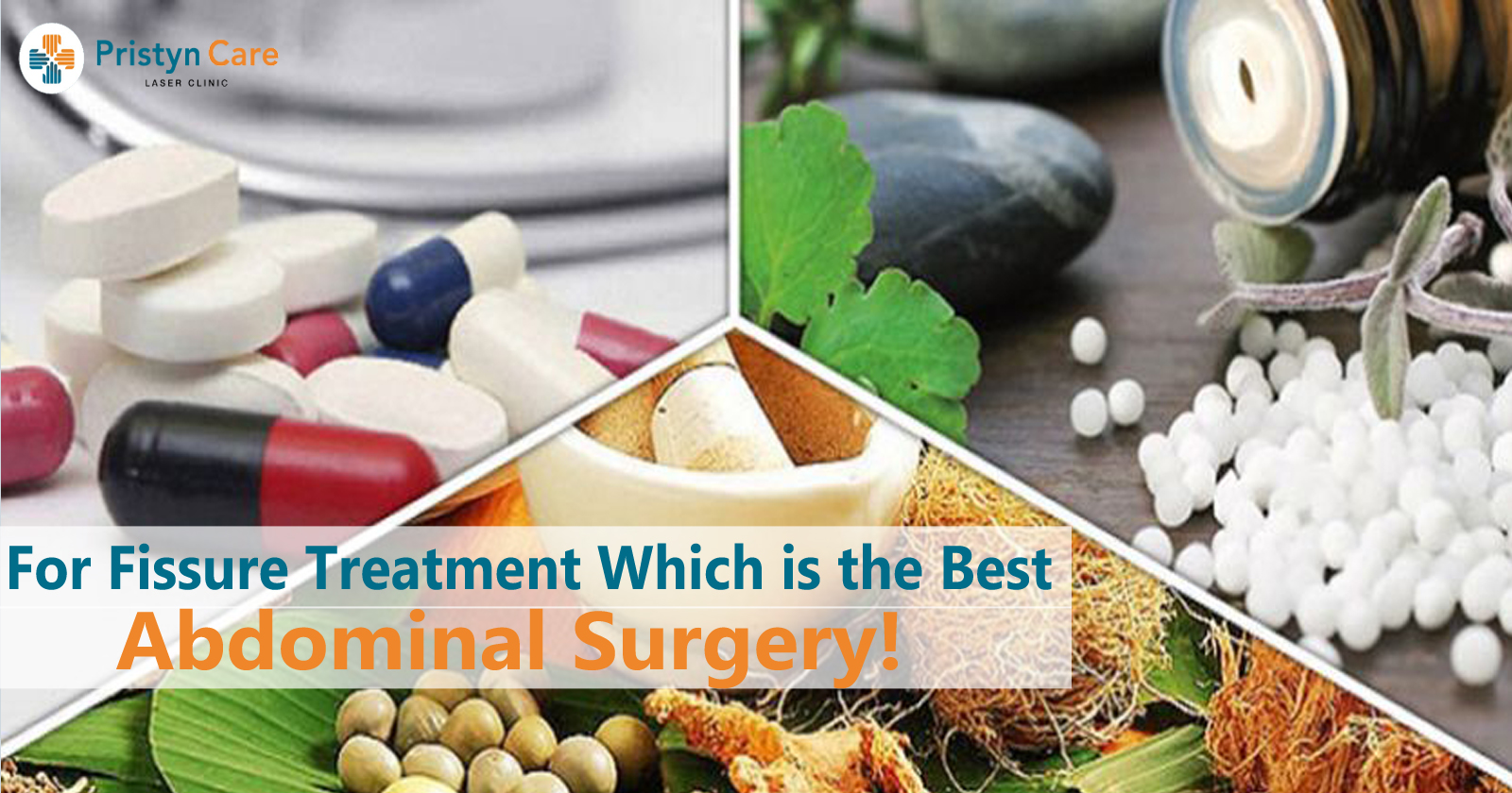 For Fissure Treatment Which is the Best- Ayurveda, Homeopathy, or Allopathy?