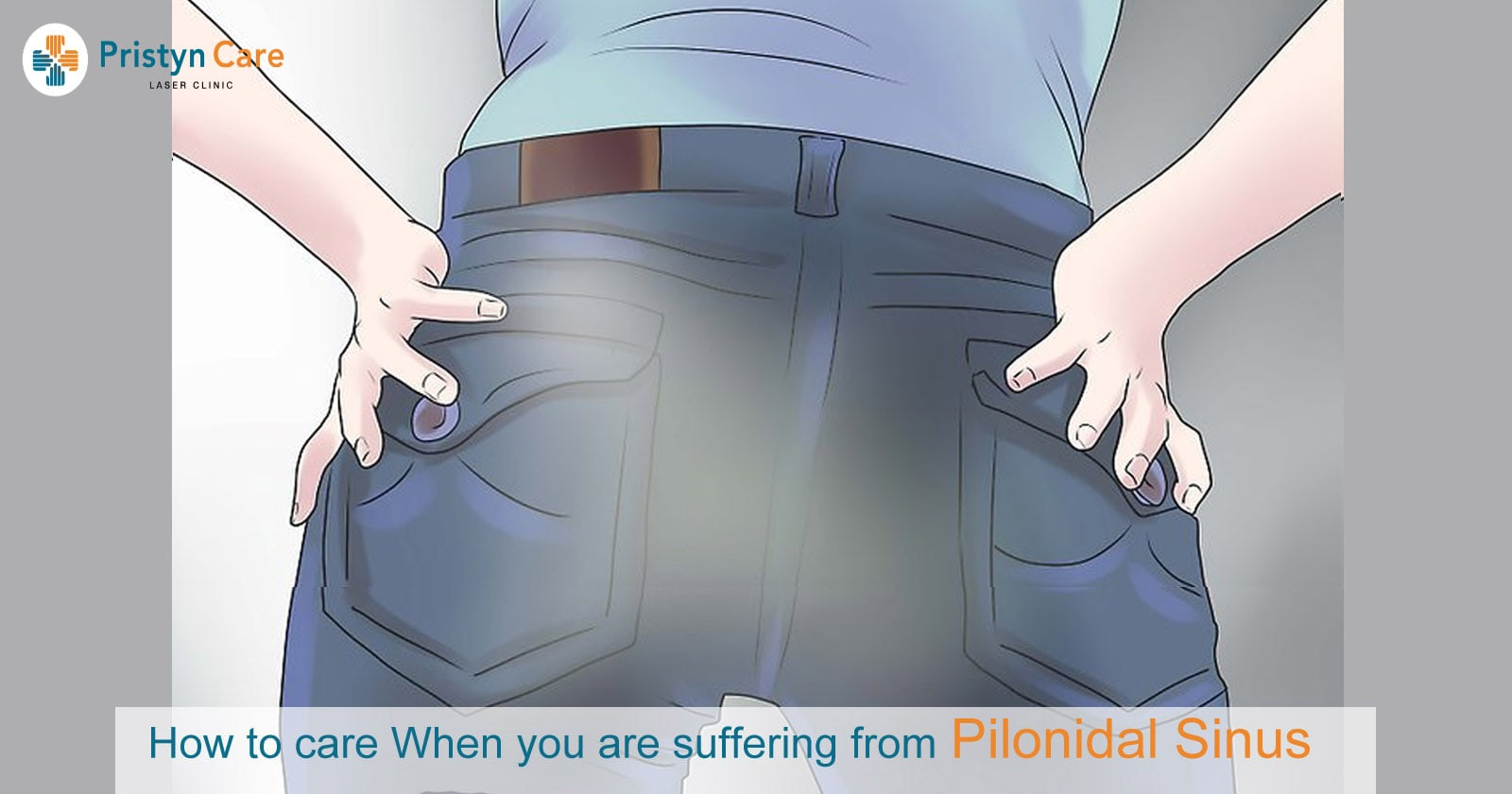 How to care When you are suffering from Pilonidal Sinus