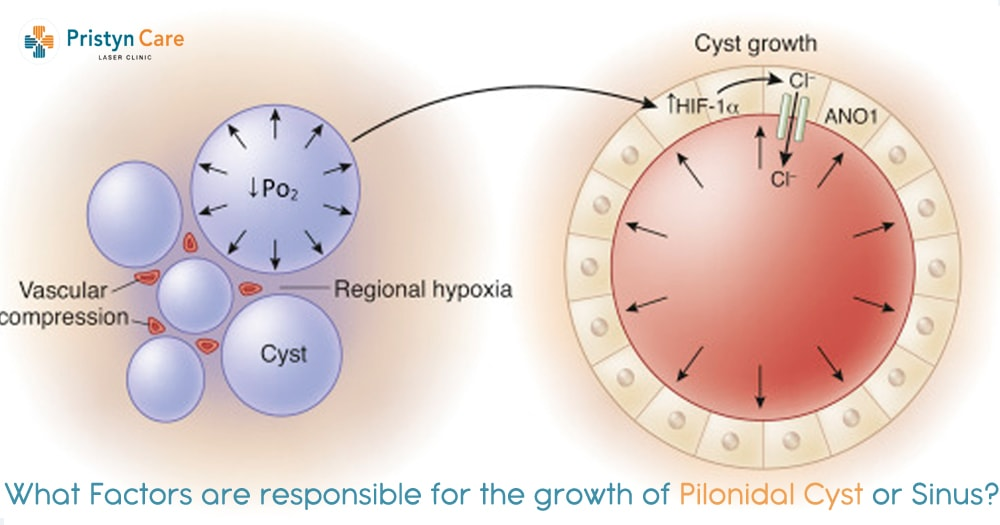 What Factors are Responsible for the Growth of Pilonidal Cyst or Sinus?