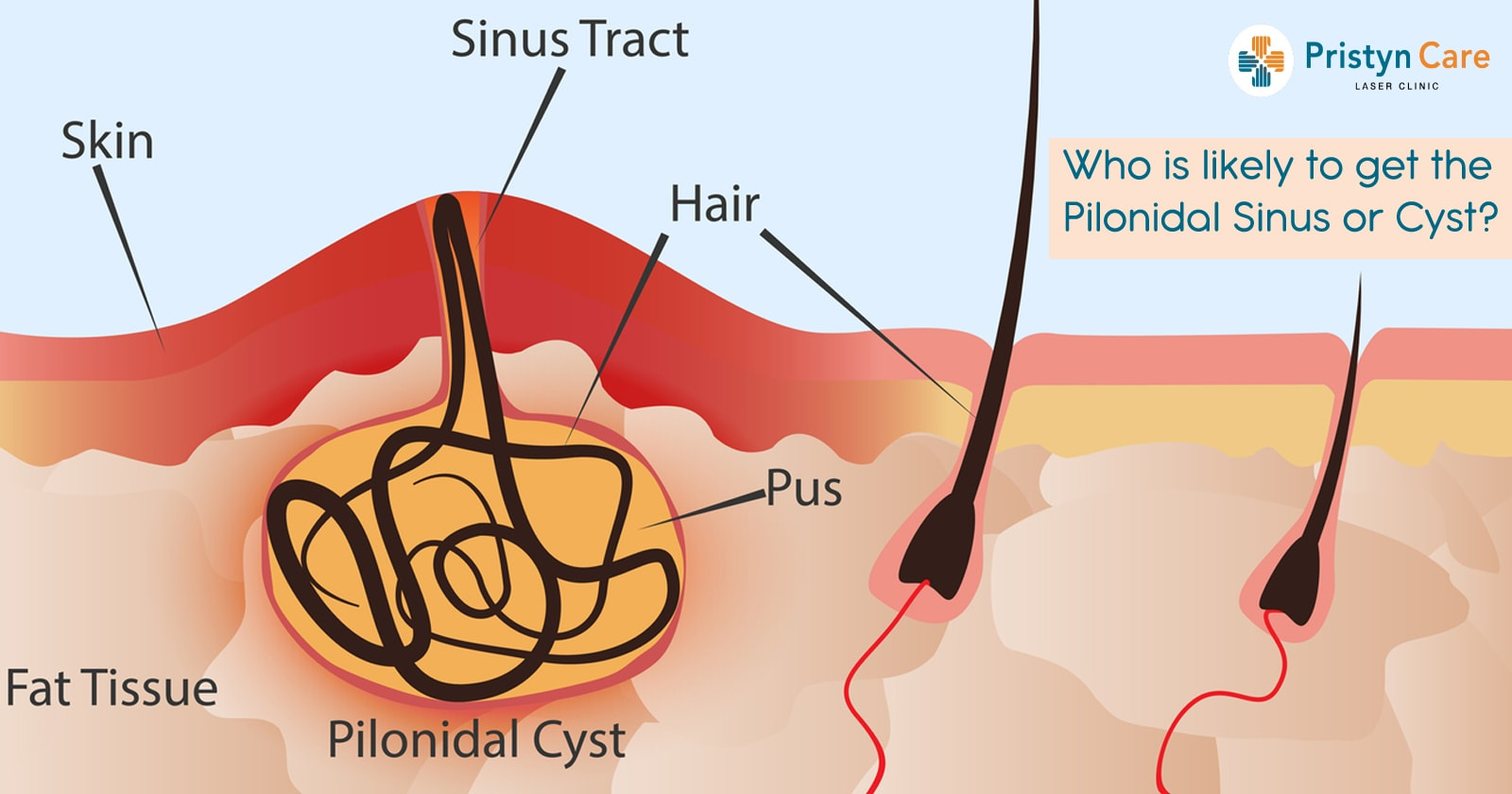 Who is likely to get the Pilonidal Sinus or Cyst?